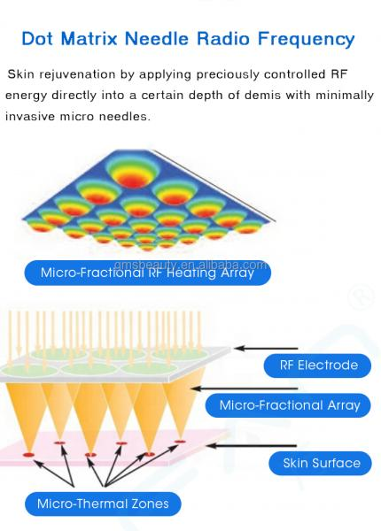 Microneedle RF White (7).png